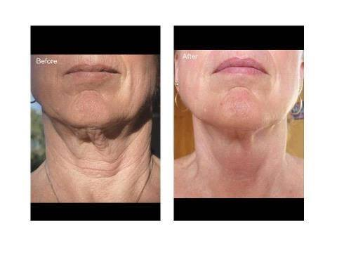 Before and After using Galvanic Spa