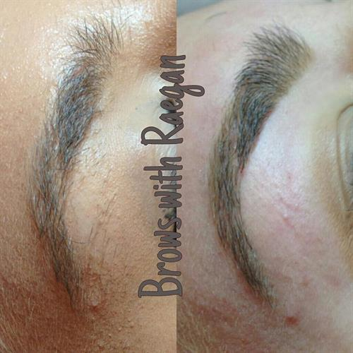 Brow Design before and after with scarring around the brow