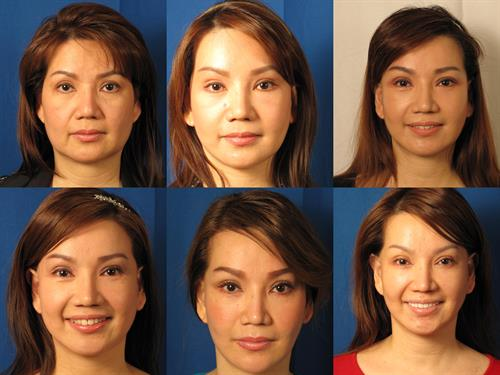 full facelift and rhinoplasty