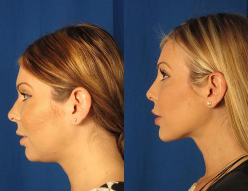 Liposuction of Neck