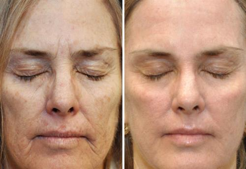 Fraxel Repair provides wonderful results removing sun damage, fine lines, pigment discolorations, and renewing your skin's texture