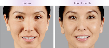 Voluma XC is a dermal filler used to re-create the facial contours of your youth. It provides instant results without any surgery!