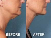 Kybella Injectable, permanently removes, non-surgically, under-chin fat that accumulates.  Come in today for your complimentary consultation.