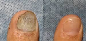 We use state of the art lasers to eradicate the fungus and restore healthy nails.