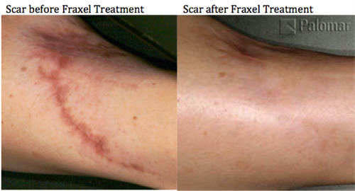 We use state of the art Fraxel Laser to eradicate scars