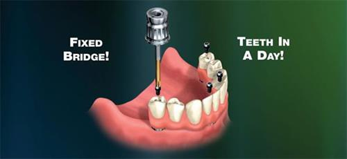 All on 4 fixed bridges on Implants in one day!