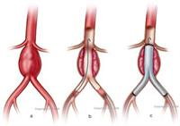 Abdominal Aneurysm Stent Grafting (a)