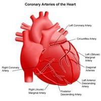 Coronary Arteries of the Heart (Coronary Angioplasty)