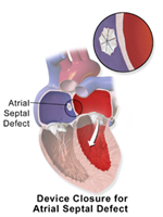 Device Closure (Congenital heart defect correction)