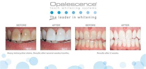 Teeth Whitening: Before and After!