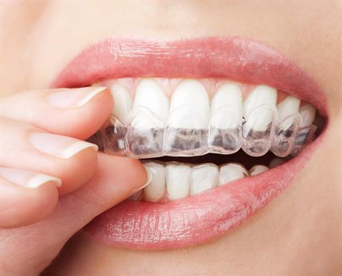 Call Y2K Dentistry today about Invisalign