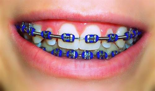 How About Some Cute Braces? Orthodontics At Y2K Dentistry