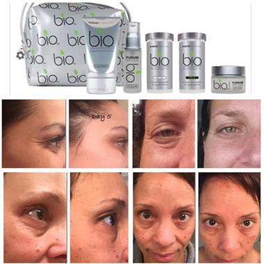 BIO skin care before and afters