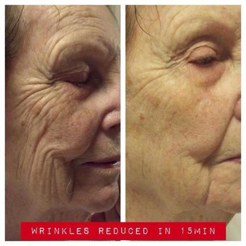 Amazing results using SEACRET Recover Masque