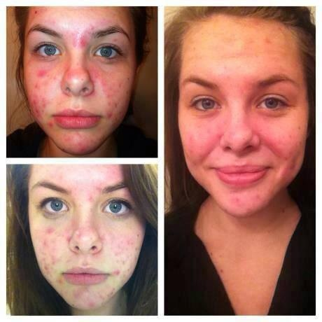 Acne be gone!  SEACRET Mud Soap and Mud Mask to the rescue!