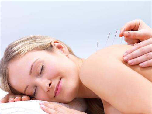 Acupuncture at the Dova Center, Louisville, CO