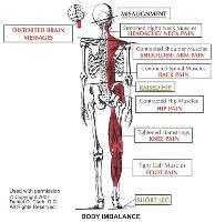 Cuando el Atlas (hueso del cuello) se sale de sitio, el resto de la espina dorsal se desalinea causando dolores.