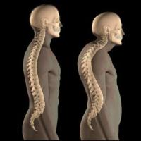 ''Look well to the spine for the cause of disease'' - Hippocrates