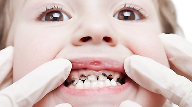 Tooth decay is preventable! We aim to radically improve the oral health in our community
