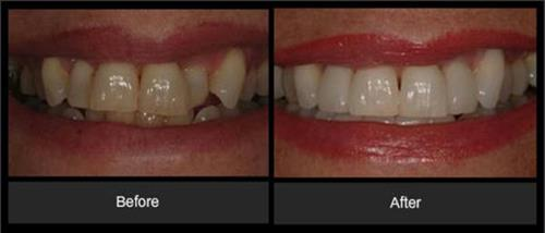 ZOOM Whitening and crown & bridge