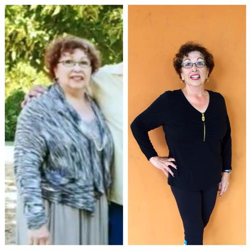 3 days after ICU, Rose lost 50lbs and 40inches in 1 year!