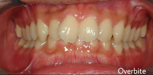 Overbite that can be corrected with orthodontic (braces) treatment.