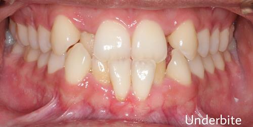 Underbite that can be corrected with orthodontic (braces) treatment.