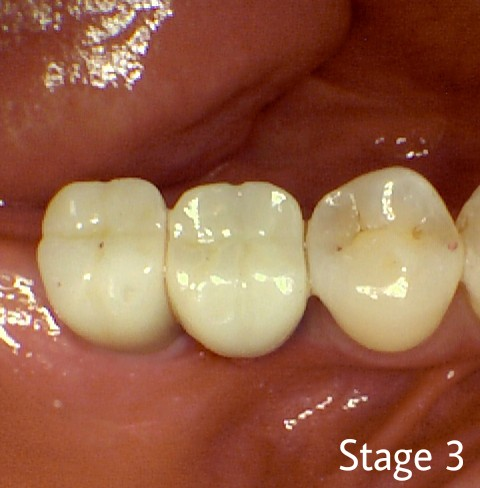 Dental Implant Final stage- Crown Delivery