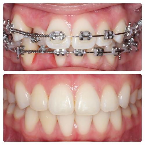 Orthodontic treatment during and after