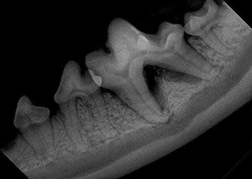Digital Dental Radiographs