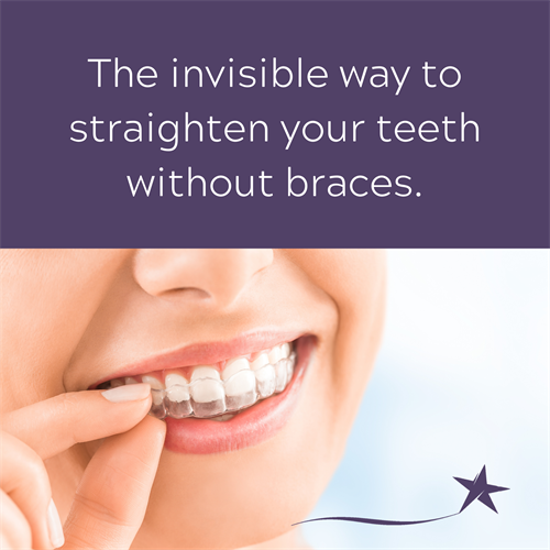 Gallery Image The_invisible_way_to_straighten_your_teeth_without_braces..png