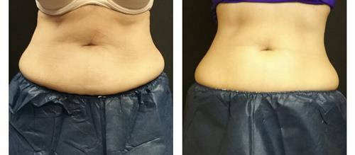 Abdomen (1 treatment, 30 days in)