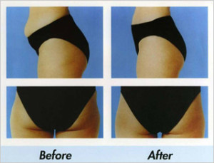 body slimming and contouring treatments