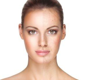 Advanced skin treatments