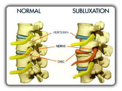Gallery Image subluxation_with_vertebral_shift.png
