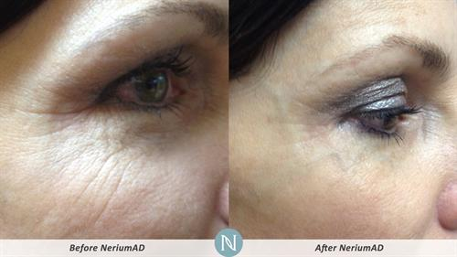 Real Results with Nerium AD Night Cream 90 days or less