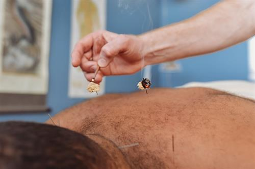 Moxibustion: an infrared heat therapy that helps to quicken the healing process