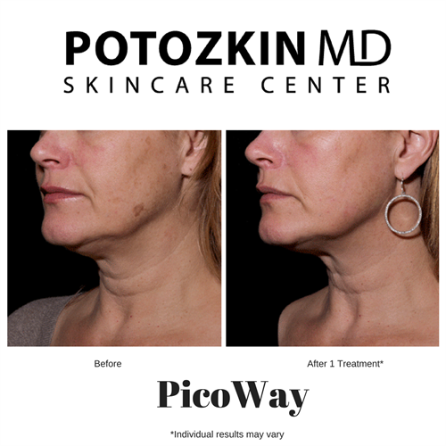 PicoWay for brown spots