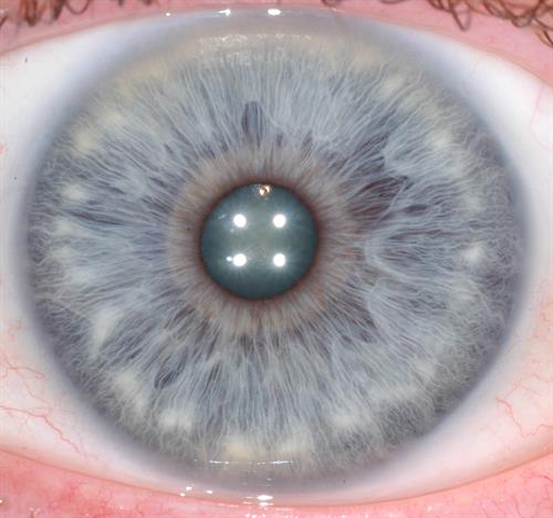 Iridology: Your Eyes Tell Stories  Pictures, Presentations, Readings Non-invasive Analytical Tool to learn about your health