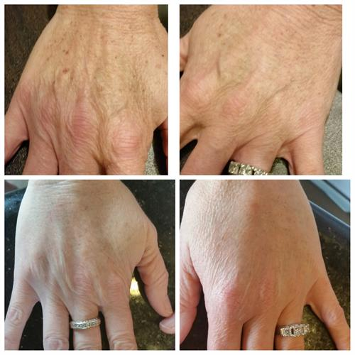 filler hand rejuvenation