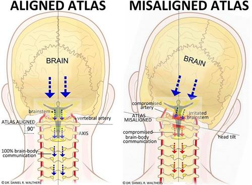 Gallery Image Atlas_axis_misalignment.jpg