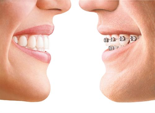You have options! Braces (traditional & clear), wires, & Invisalign®