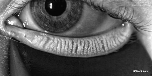 Gland imaging technology assesses dry eye disease