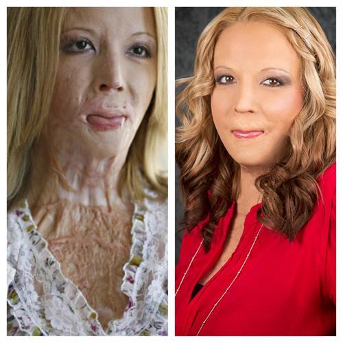 Amazing Survivor and Face Forward Patient Audrey