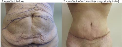 Tummy Tuck procedure removes excess loose skin via surgery.  Scar gradually fades.