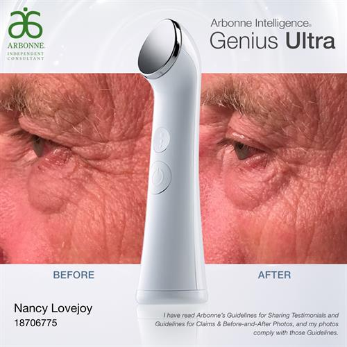 After 1 use of Genius Ultra - Men benefit from this ultrasound skincare device too!