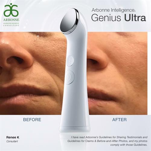 Ultrasound Technology + Arbonne Ultra Premium Skincare = Beautiful skin!