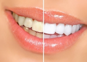 Gallery Image teeth-whitening-before-and-after_small.jpg