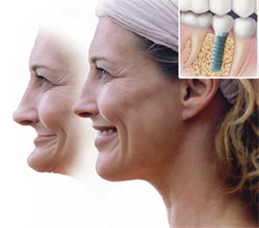 Improve your smile with Dental Implants