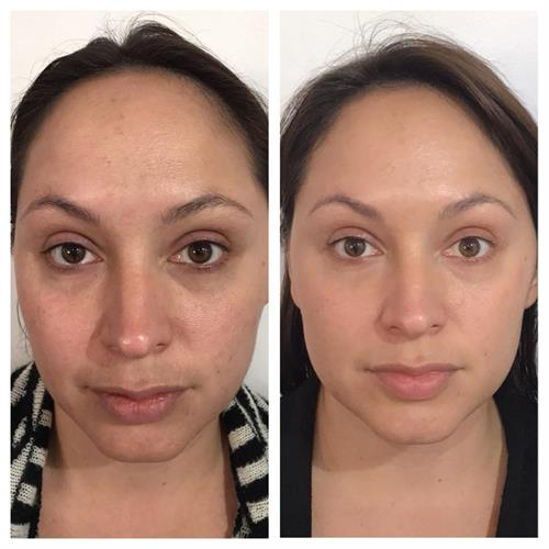 Amazing 4 week results on a natural anti-aging product.